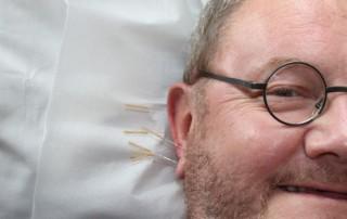 Acupuncture, Chinese Medicine, and Autoimmune Disease